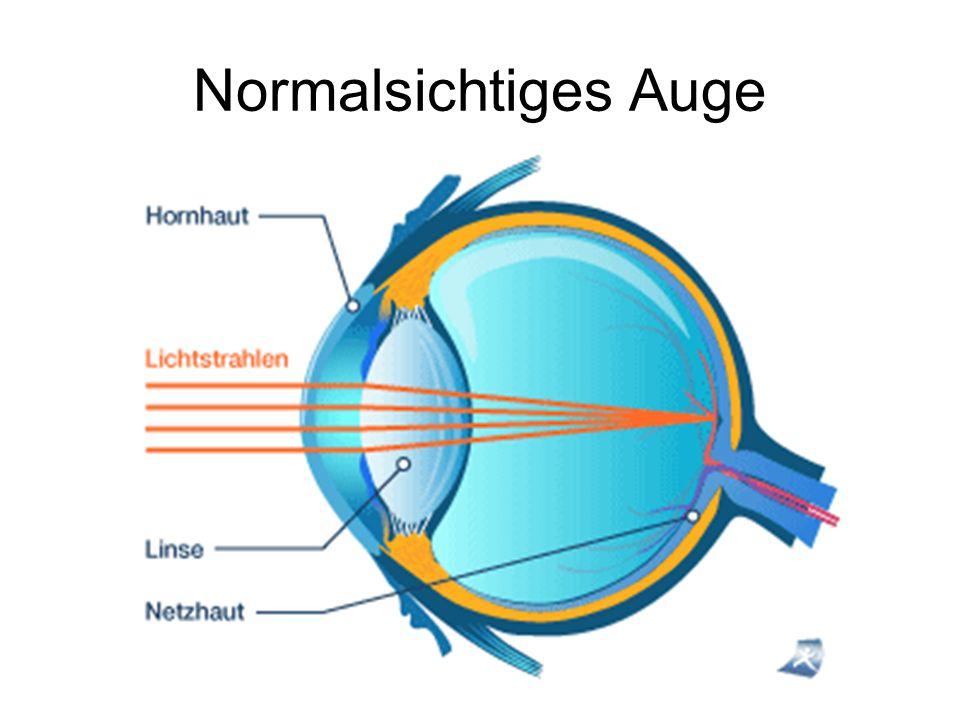 Normalsichtiges Auge