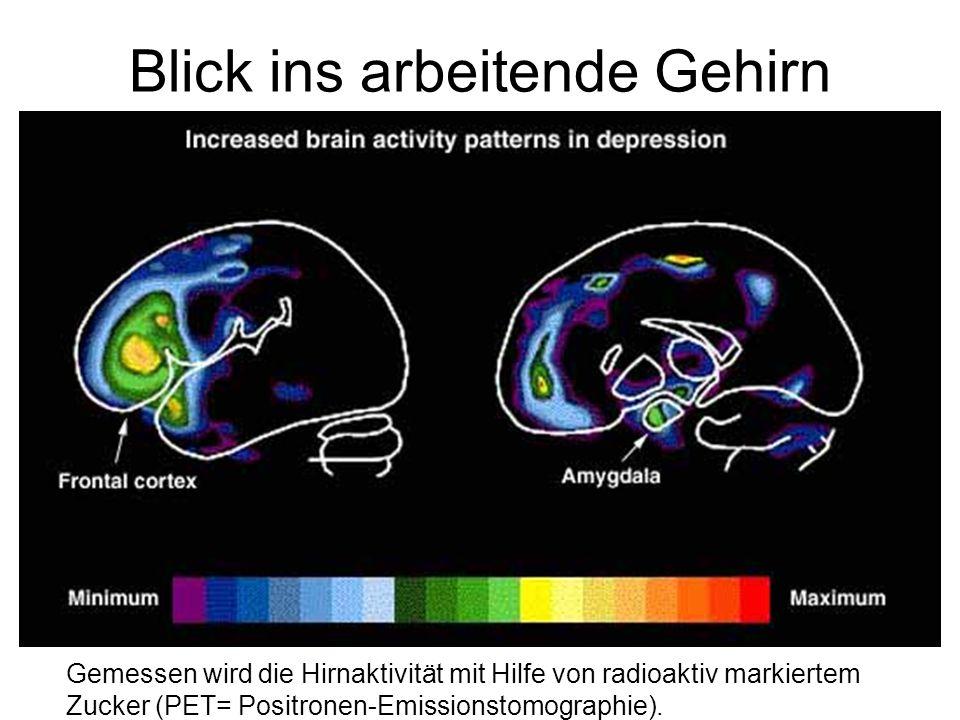 Blick ins arbeitende Gehirn Gemessen wird die Hirnaktivität mit Hilfe von radioaktiv markiertem Zucker (PET= Positronen-Emissionstomographie).
