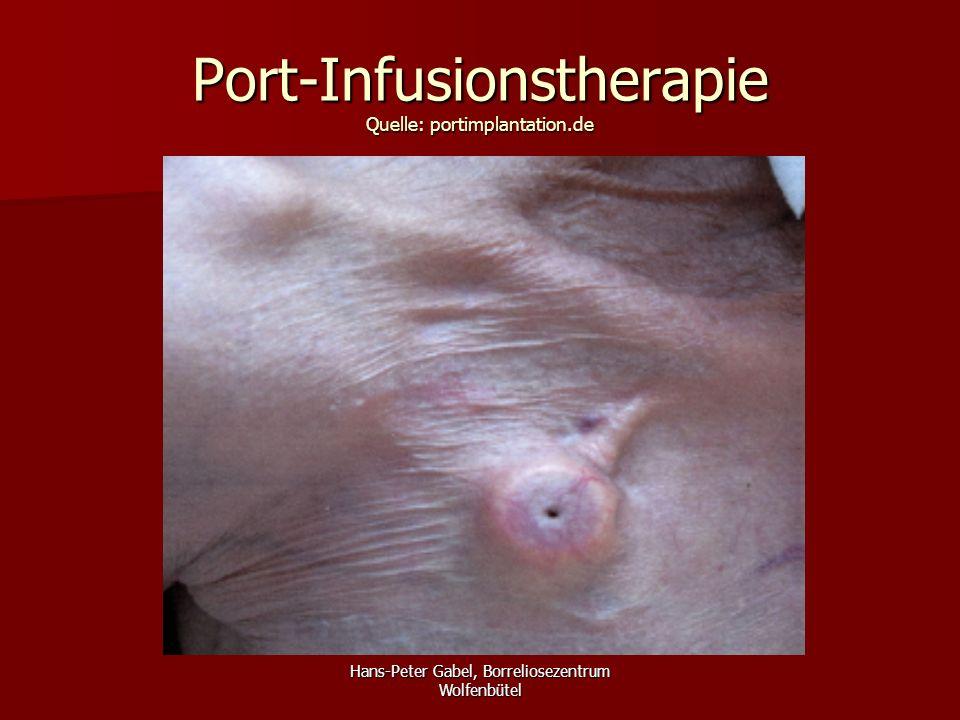Port-Infusionstherapie Zusammenfassung Die Port-Infusionstherapie ist Die Port-Infusionstherapie ist –einfach –etabliert –patientengerecht –kostengünstig –ambulant möglich