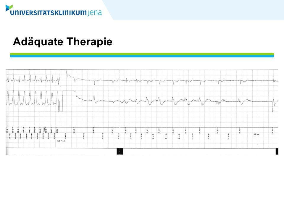 """Inadäquate Therapie Therapie (ATP oder Schock) des ICD bei supraventrikulären Tachykardien oder bei oversensing (""""noise ) ca 50% Vorhofflimmern ca 30% regelmäßige SVT ca 20% andere Ursachen (noise…) Alles, was keine adäquate Therapie ist"""
