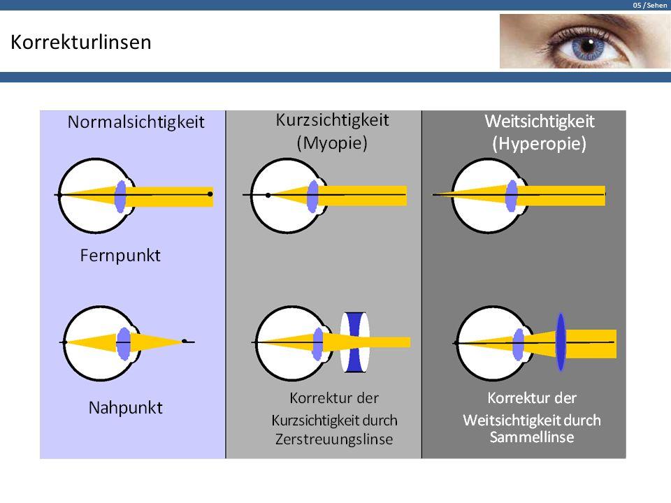 05 / Sehen Korrekturlinsen