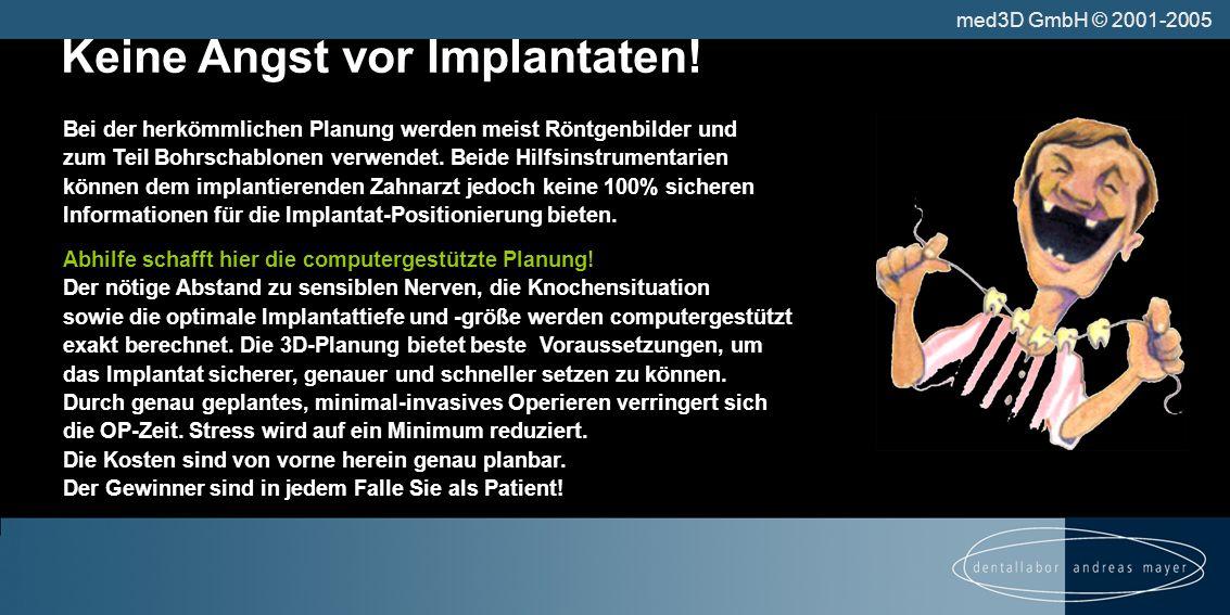 Keine Angst vor Implantaten.