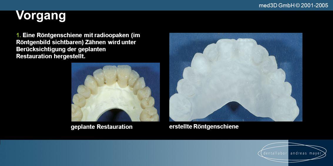 Vorgang erstellte Röntgenschiene 1.
