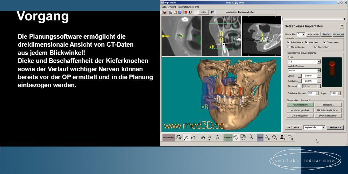 Die Planungssoftware ermöglicht die dreidimensionale Ansicht von CT-Daten aus jedem Blickwinkel.