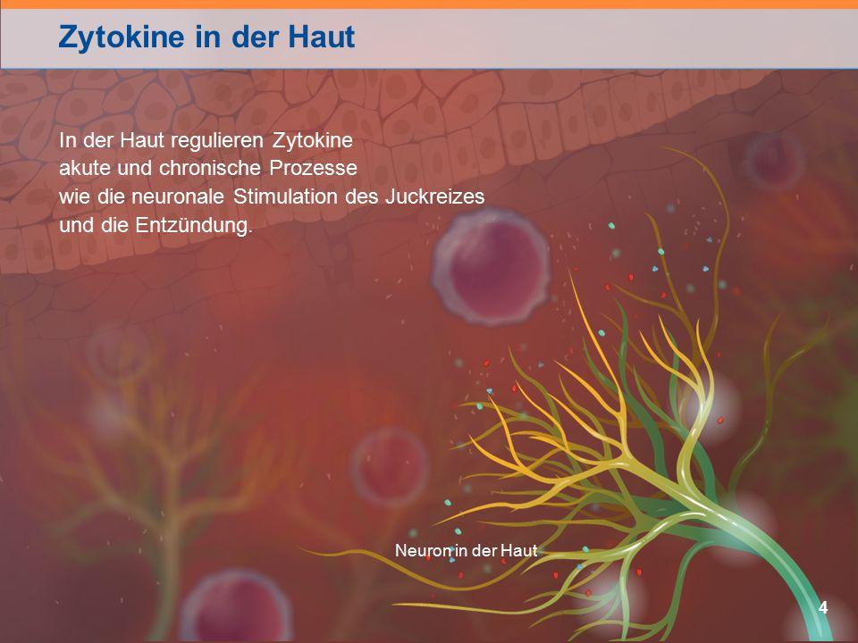 Zytokine in der Haut 4 Neuron in der Haut In der Haut regulieren Zytokine akute und chronische Prozesse wie die neuronale Stimulation des Juckreizes und die Entzündung.