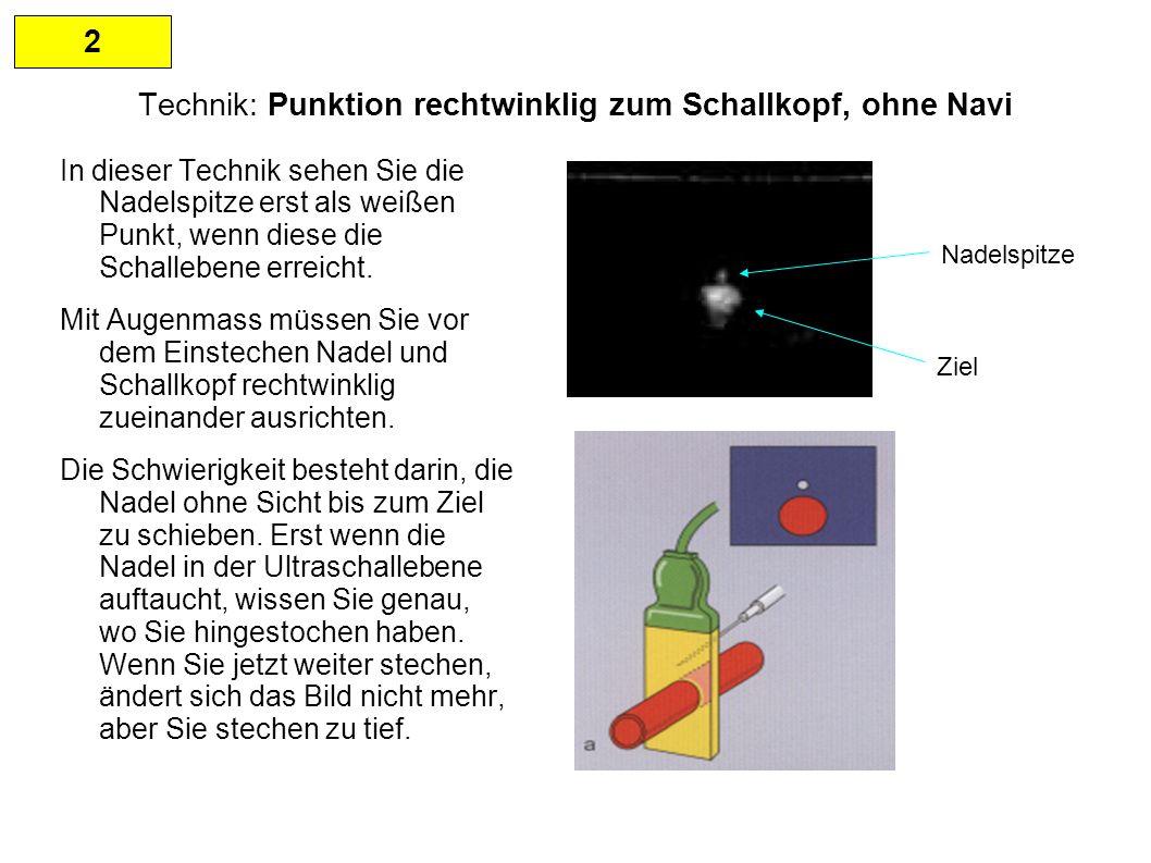 2 Technik: Punktion rechtwinklig zum Schallkopf, ohne Navi In dieser Technik sehen Sie die Nadelspitze erst als weißen Punkt, wenn diese die Schallebene erreicht.