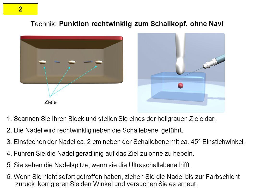 2 Technik: Punktion rechtwinklig zum Schallkopf, ohne Navi HINWEISE: Beim Erreichen der Schallebene mit der Nadelspitze zeigt sich nur ein weißer Punkt.