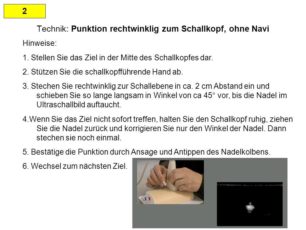 2 Technik: Punktion rechtwinklig zum Schallkopf, ohne Navi Hinweise: 1.