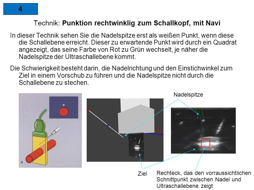 4 Technik: Punktion rechtwinklig zum Schallkopf, mit Navi In dieser Technik sehen Sie die Nadelspitze erst als weißen Punkt, wenn diese die Schallebene erreicht.