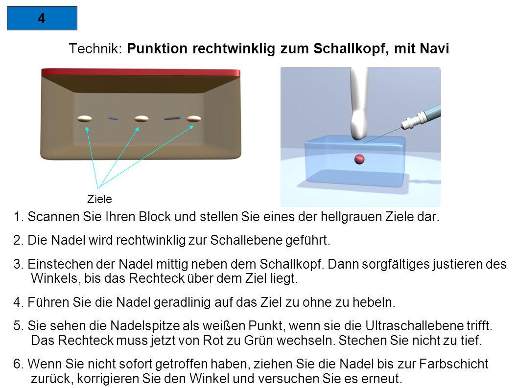 4 Technik: Punktion rechtwinklig zum Schallkopf, mit Navi Ziele 1.