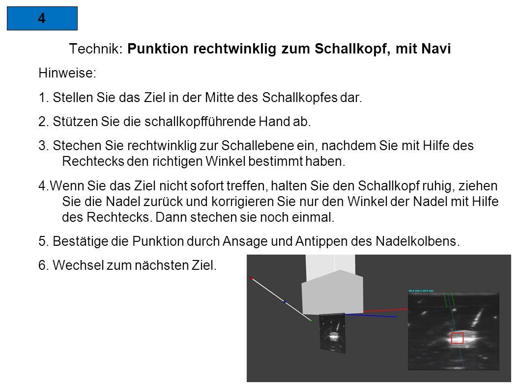 4 Technik: Punktion rechtwinklig zum Schallkopf, mit Navi Hinweise: 1.