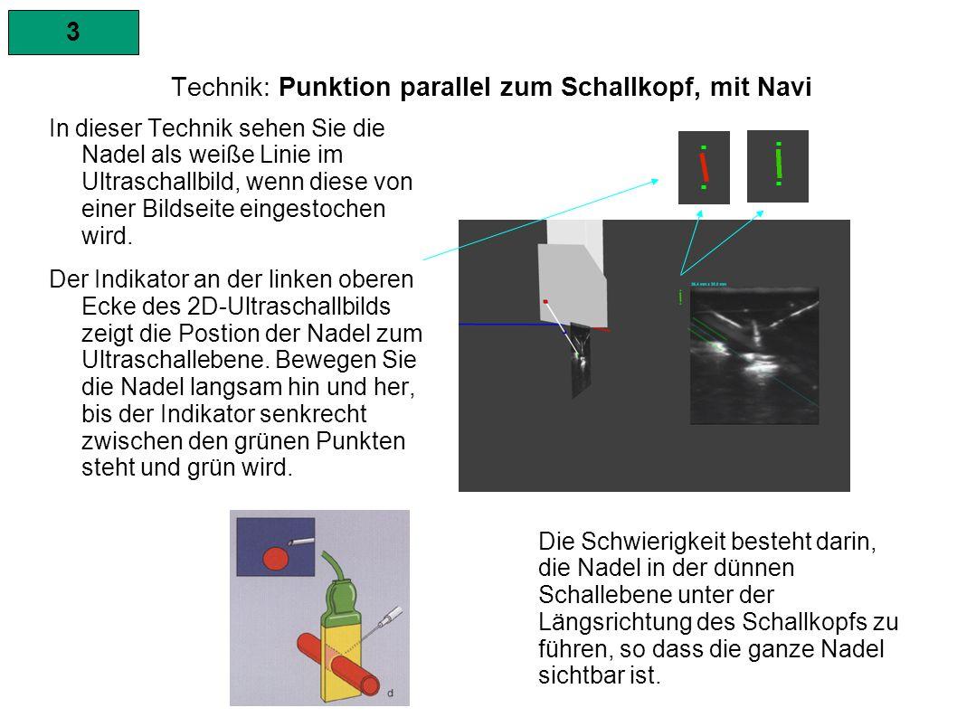 3 Technik: Punktion parallel zum Schallkopf, mit Navi In dieser Technik sehen Sie die Nadel als weiße Linie im Ultraschallbild, wenn diese von einer Bildseite eingestochen wird.
