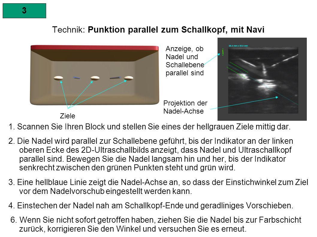 3 Technik: Punktion parallel zum Schallkopf, mit Navi HINWEISE: Wenn die Nadel aus dem Ultraschallbild verschwindet, den Schallkopf langsam parallel nach links oder rechts verschieben oder leicht rotierend bewegen, bis die Nadel wieder ganz dargestellt wird.