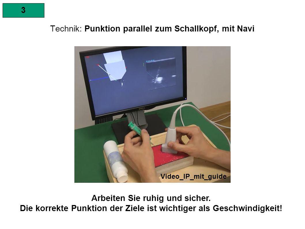3 Technik: Punktion parallel zum Schallkopf, mit Navi 1.Stellen Sie das Ziel in der Mitte des Schallkopfes dar.