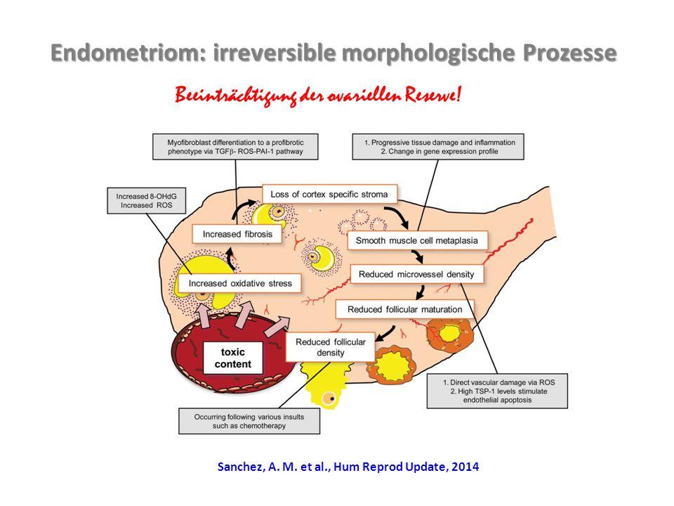 Endometriom: irreversible morphologische Prozesse Beeinträchtigung der ovariellen Reserve.