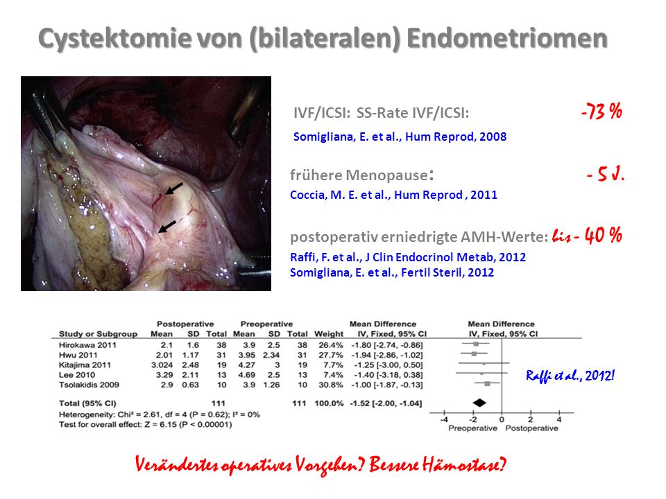 Figure 1 Laservaporisation Cystektomie von (bilateralen) Endometriomen IVF/ICSI: SS-Rate IVF/ICSI: -73 % Somigliana, E.
