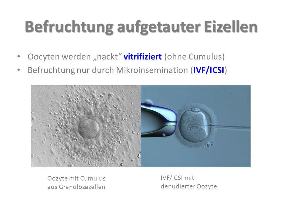 """Befruchtung aufgetauter Eizellen Oocyten werden """"nackt vitrifiziert (ohne Cumulus) Befruchtung nur durch Mikroinsemination (IVF/ICSI) Oozyte mit Cumulus aus Granulosazellen IVF/ICSI mit denudierter Oozyte"""