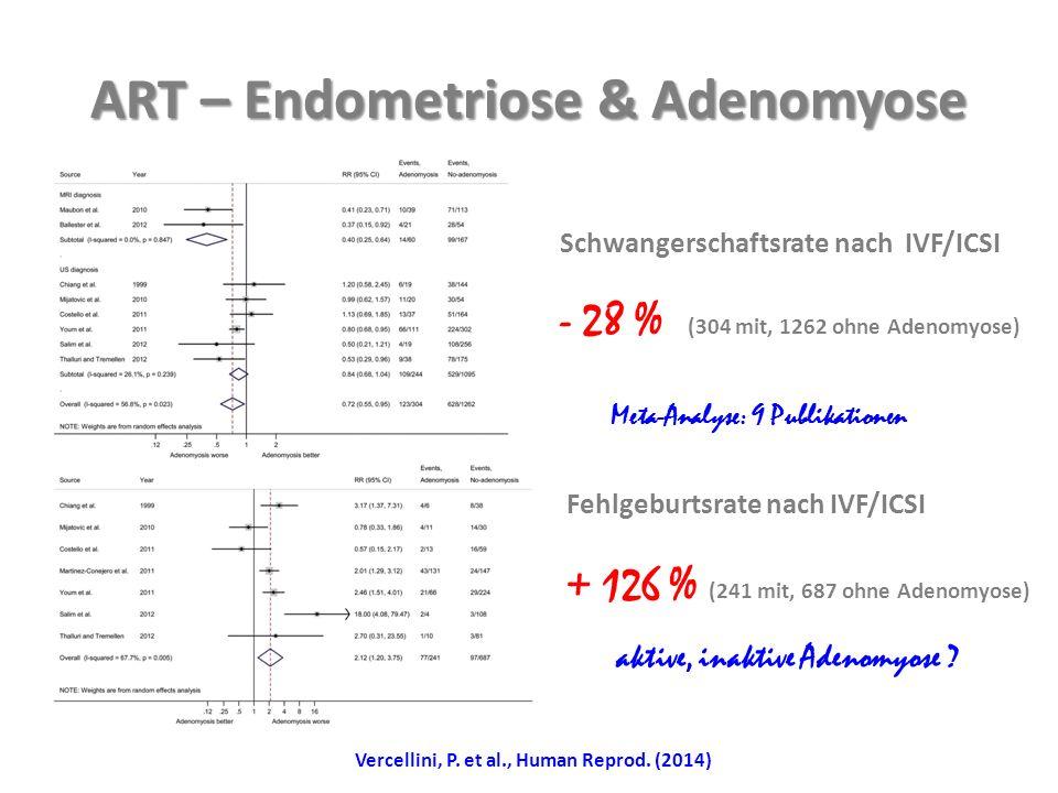 ART – Endometriose & Adenomyose Schwangerschaftsrate nach IVF/ICSI - 28 % (304 mit, 1262 ohne Adenomyose) Fehlgeburtsrate nach IVF/ICSI + 126 % (241 mit, 687 ohne Adenomyose) aktive, inaktive Adenomyose .