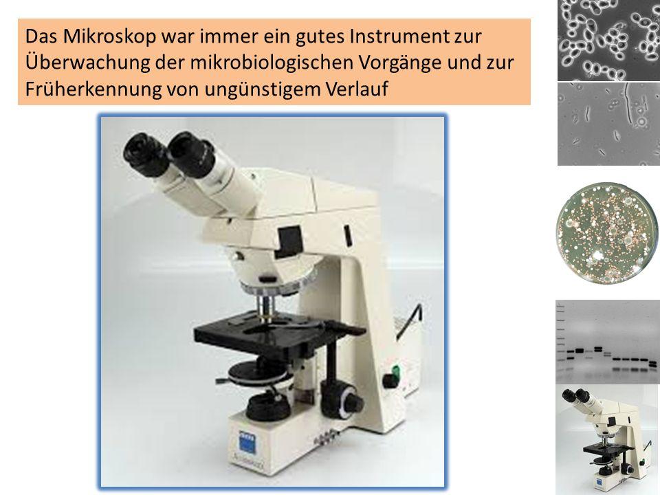 Das Mikroskop war immer ein gutes Instrument zur Überwachung der mikrobiologischen Vorgänge und zur Früherkennung von ungünstigem Verlauf