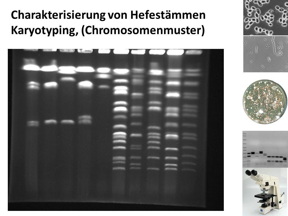 Charakterisierung von Hefestämmen Karyotyping, (Chromosomenmuster)