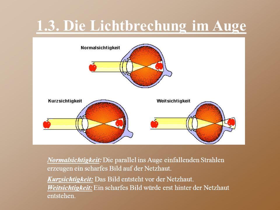1.3. Die Lichtbrechung im Auge Normalsichtigkeit: Die parallel ins Auge einfallenden Strahlen erzeugen ein scharfes Bild auf der Netzhaut. Kurzsichtig
