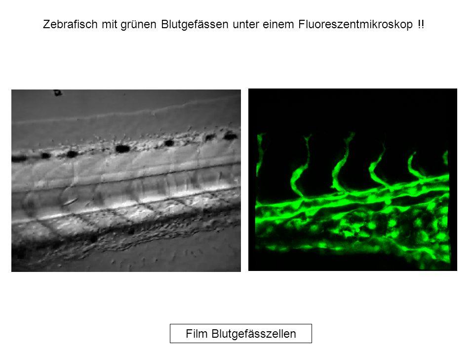 Film Blutgefässzellen Zebrafisch mit grünen Blutgefässen unter einem Fluoreszentmikroskop !!