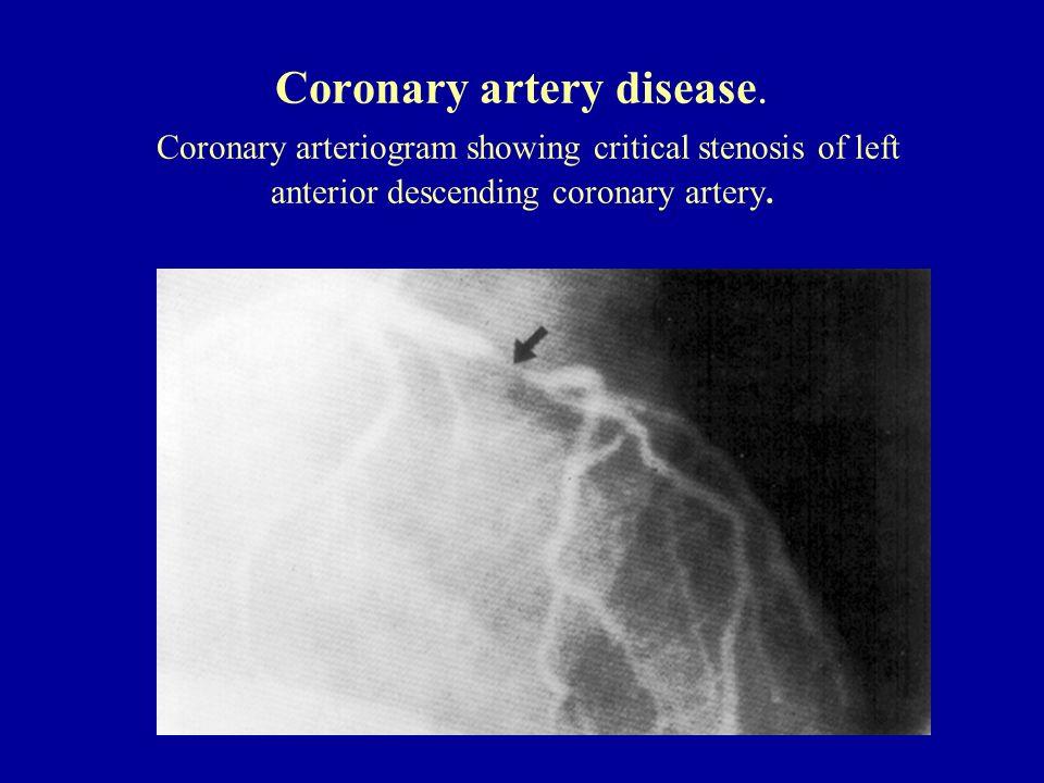 Coronary artery disease. Coronary arteriogram showing critical stenosis of left anterior descending coronary artery.