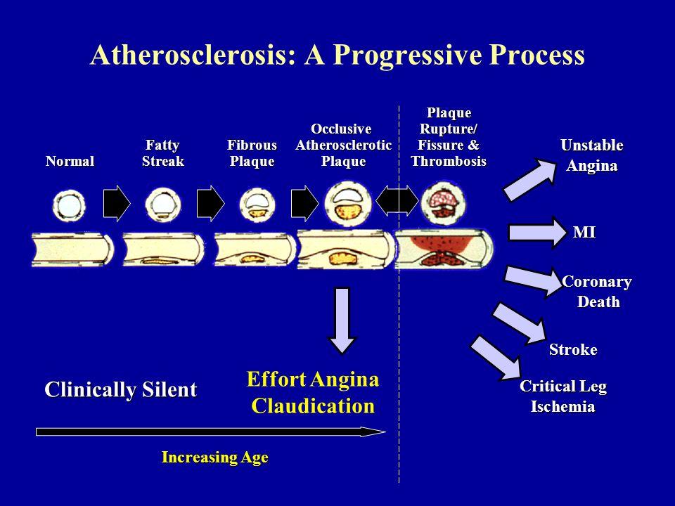 Normal Fatty Streak Fibrous Plaque Occlusive Atherosclerotic Plaque Plaque Rupture/ Fissure & Thrombosis MI Stroke Critical Leg Ischemia Clinically Si