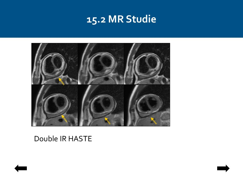 15.2 MR Studie Double IR HASTE