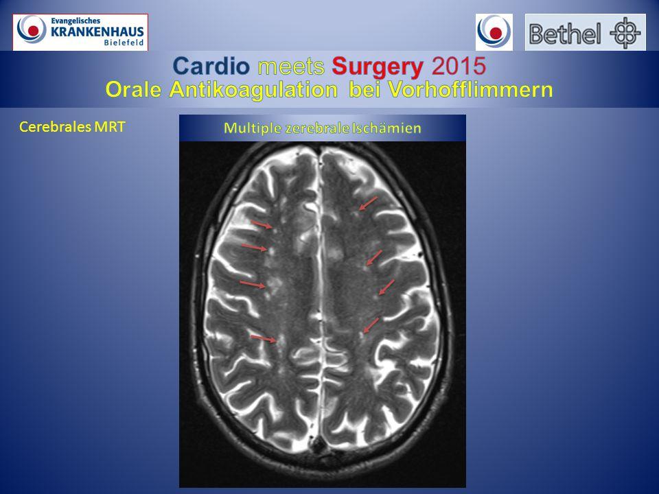 Camm AJ et al. Eur Heart J. 2012 Nov;33(21):2719-47