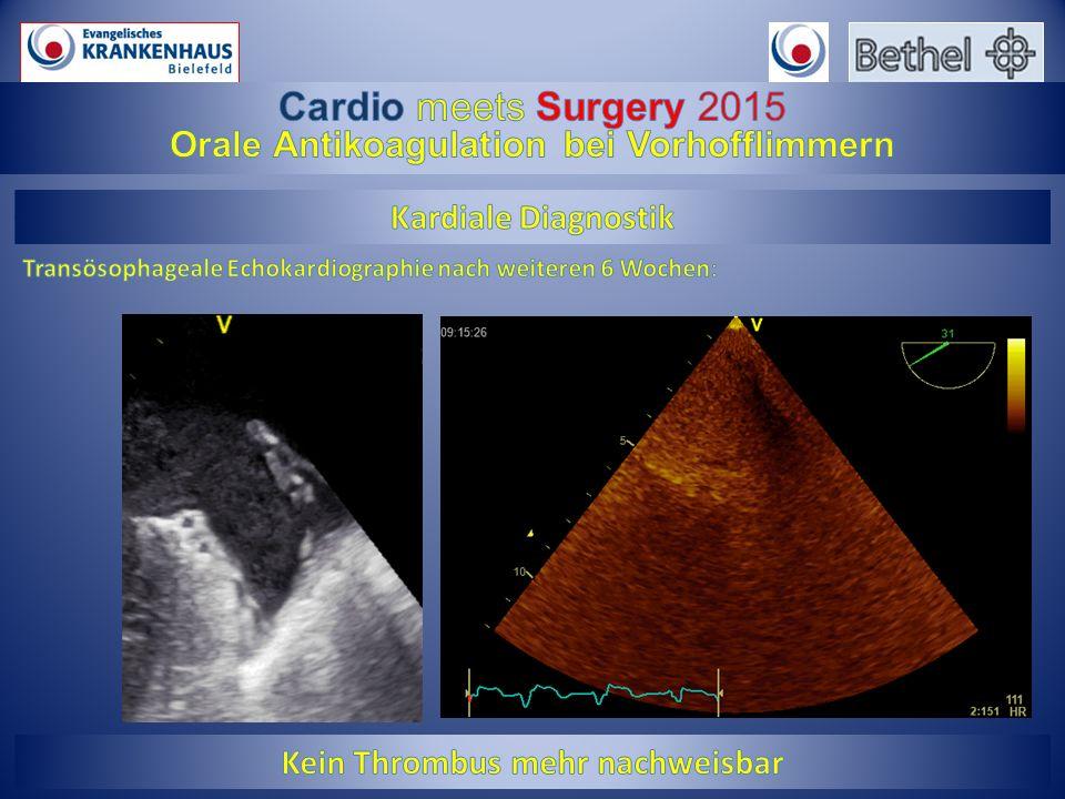 Pradaxa 150 mg Alle NOAKS NOAK gepoolt Ruff CT,Lancet. 2014 Mar 15;383(9921):955-62
