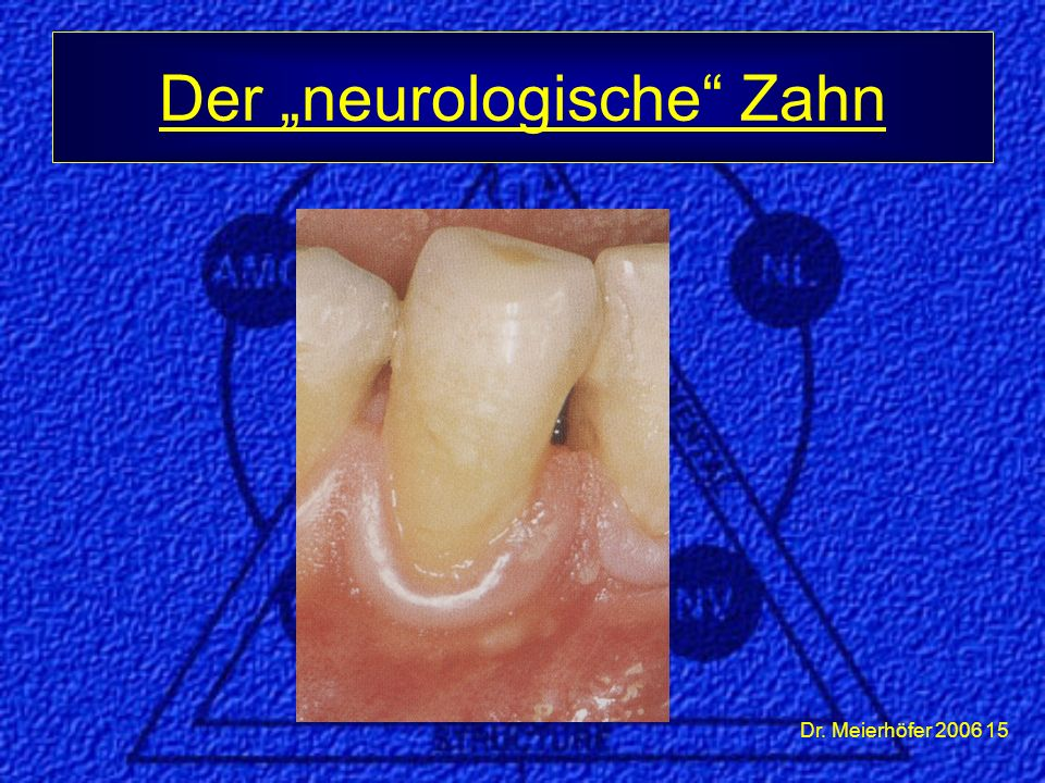 "Dr. Meierhöfer 2006 15 Der ""neurologische"" Zahn"