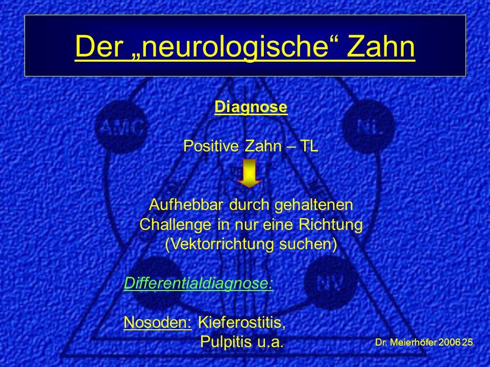 """Dr. Meierhöfer 2006 25 Der """"neurologische"""" Zahn Diagnose Positive Zahn – TL Aufhebbar durch gehaltenen Challenge in nur eine Richtung (Vektorrichtung"""