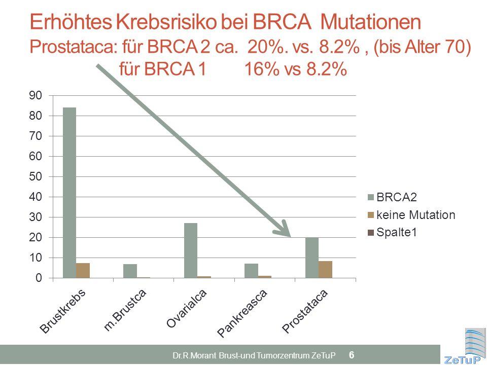 Erhöhtes Krebsrisiko bei BRCA Mutationen Prostataca: für BRCA 2 ca. 20%. vs. 8.2%, (bis Alter 70) für BRCA 1 16% vs 8.2% Dr.R.Morant Brust-und Tumorze