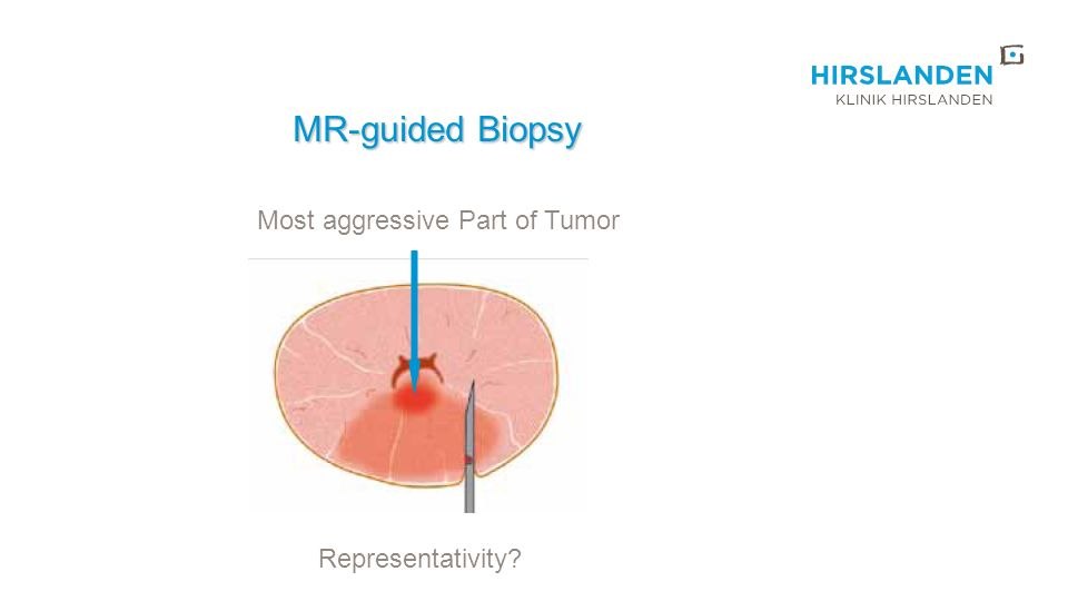 Most aggressive Part of Tumor Representativity? MR-guided Biopsy MR-guided Biopsy