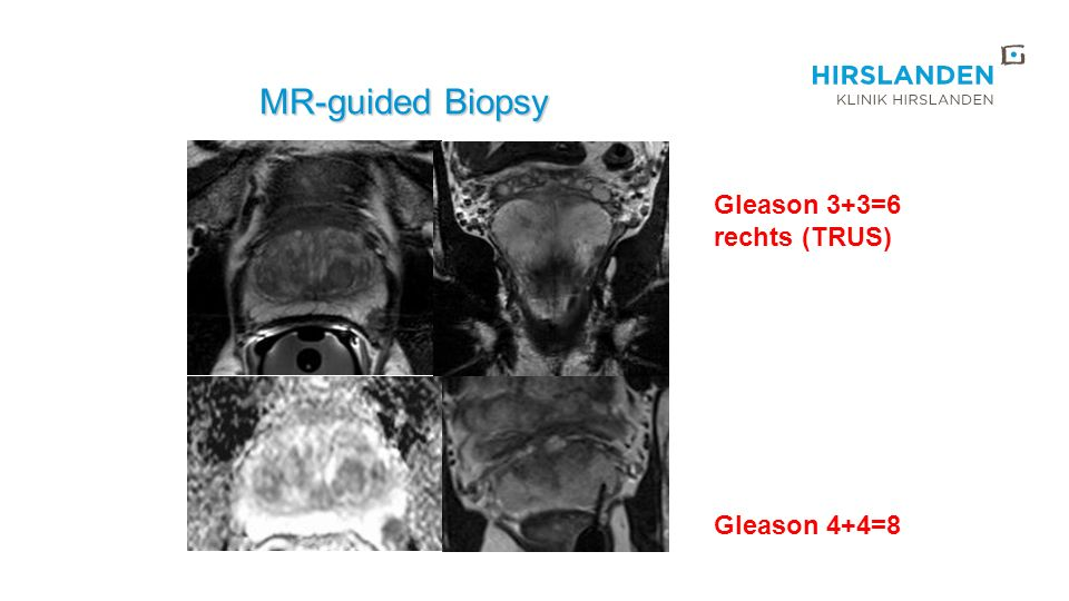 MR-guided Biopsy MR-guided Biopsy Gleason 3+3=6 rechts (TRUS) Gleason 4+4=8