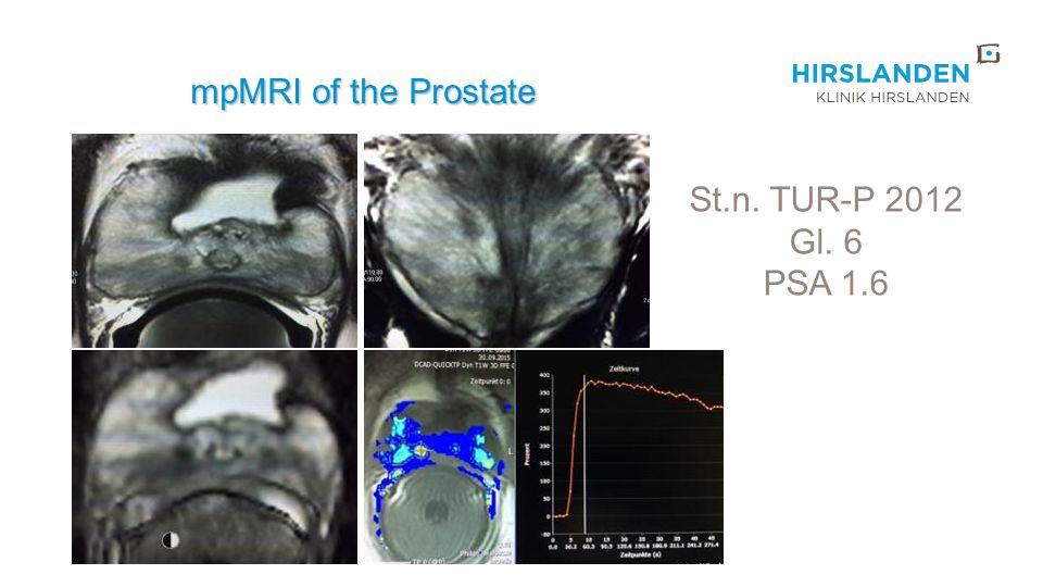 mpMRI of the Prostate St.n. TUR-P 2012 Gl. 6 PSA 1.6