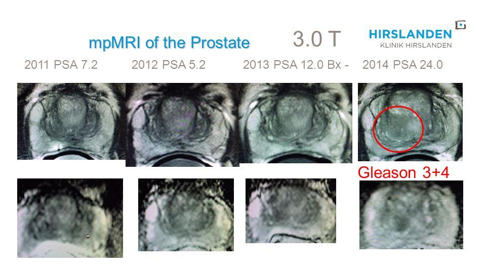mpMRI of the Prostate 3.0 T 2011 PSA 7.2 2012 PSA 5.2 2013 PSA 12.0 Bx - 2014 PSA 24.0 Gleason 3+4