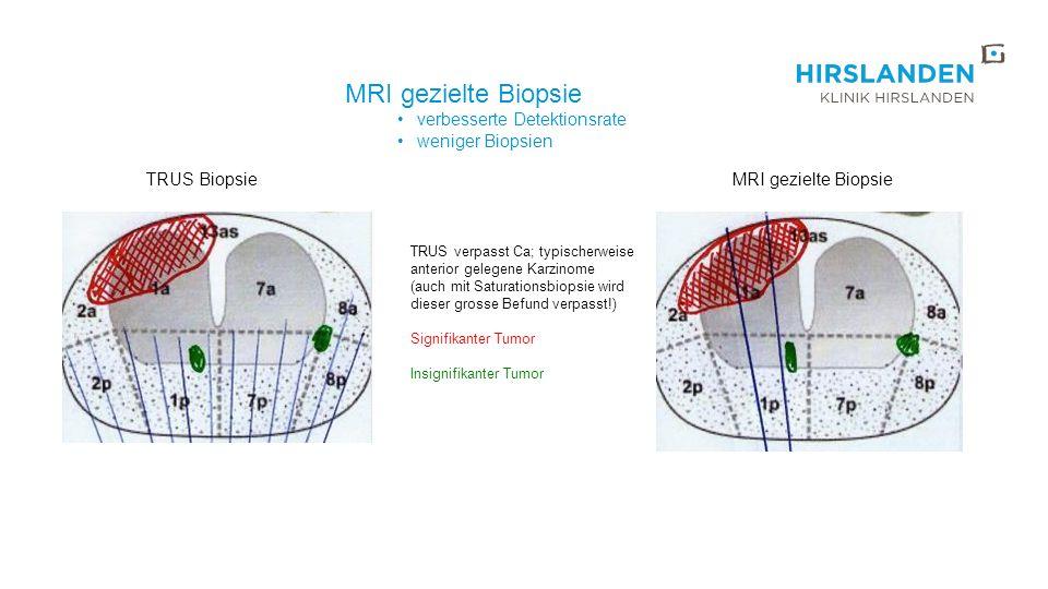 TRUS verpasst Ca; typischerweise anterior gelegene Karzinome (auch mit Saturationsbiopsie wird dieser grosse Befund verpasst!) Signifikanter Tumor Ins
