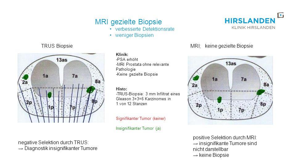 MRI; keine gezielte Biopsie Klinik: -PSA erhöht -MRI Prostata ohne relevante Pathologie -Keine gezielte Biopsie Histo: -TRUS-Biopsie: 3 mm Infiltrat e