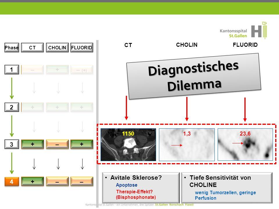 CT CHOLIN FLUORID 1 2 3 + + – – + + 4 4 + + – – – – Phase CTCHOLINFLUORID 11501,323,6 Diagnostisches Dilemma Tiefe Sensitivität von CHOLINE wenig Tumorzellen, geringe Perfusion Avitale Sklerose.