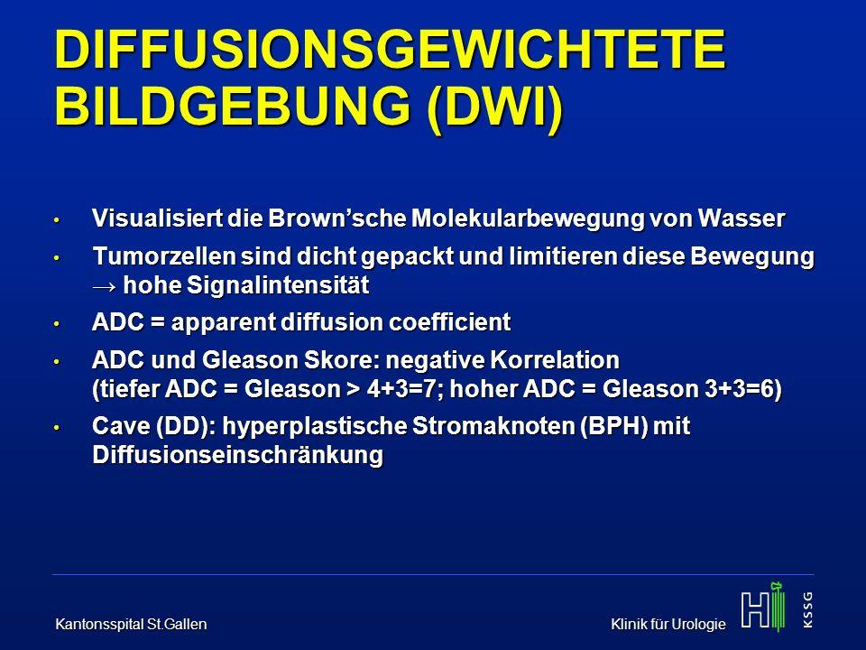 Kantonsspital St.Gallen Klinik für Urologie DYNAMISCHE KONTRASTMITTEL- VERSTÄRKUNG (DCE) Beurteilung von Vaskularität und Gewebepermeabilität Beurteilung von Vaskularität und Gewebepermeabilität Gadolinium i/v, T1-Gewichtung Gadolinium i/v, T1-Gewichtung PCa: schneller wash-in, schneller wash-out PCa: schneller wash-in, schneller wash-out CAVE (DD):- hyperplastische BPH-Knoten - Entzündliche Prozesse CAVE (DD):- hyperplastische BPH-Knoten - Entzündliche Prozesse Sehr sensitiv, v.a.