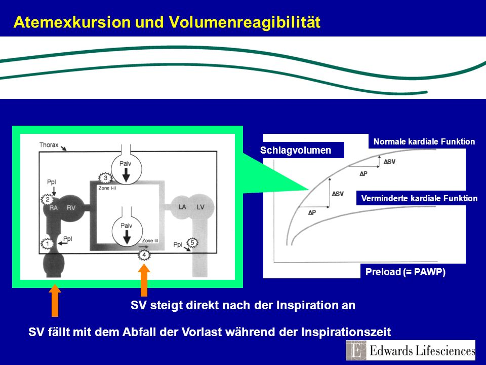 Atemexkursion und Volumenreagibilität SV steigt direkt nach der Inspiration an SV fällt mit dem Abfall der Vorlast während der Inspirationszeit Normal