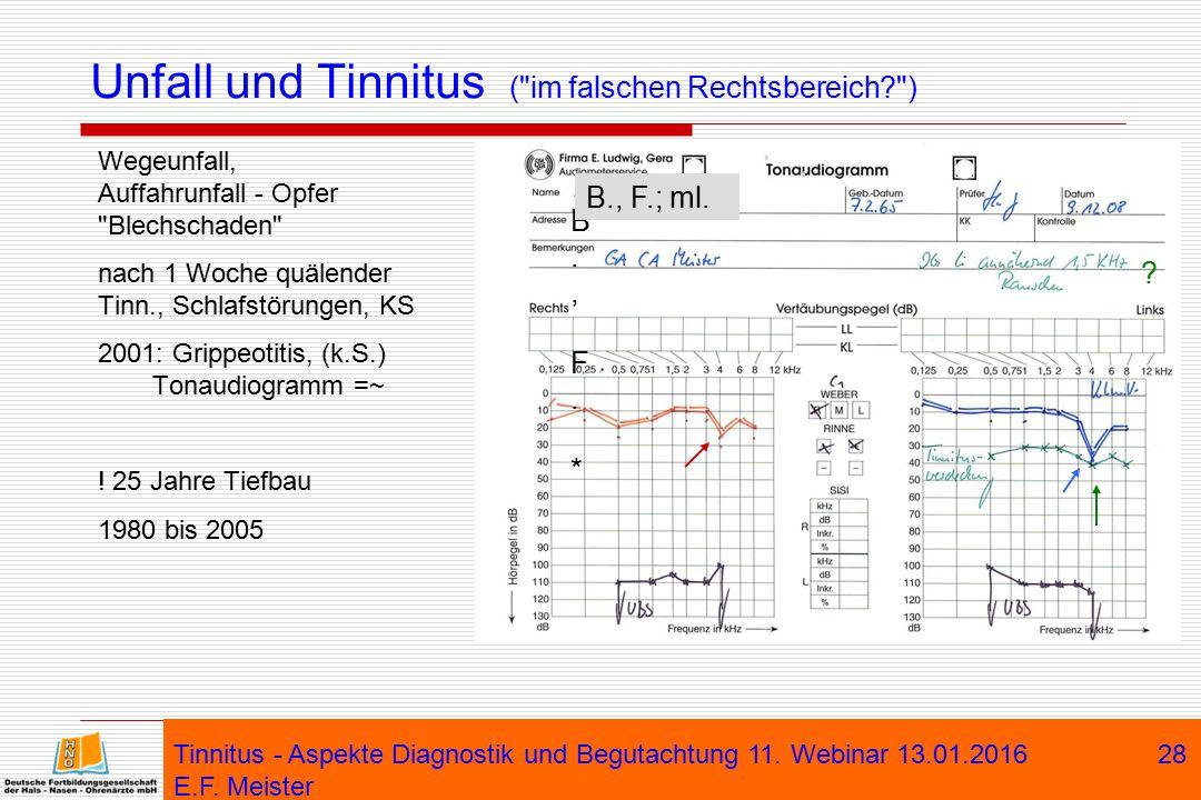 Tinnitus - Aspekte Diagnostik und Begutachtung 11. Webinar 13.01.2016 E.F. Meister 28 Unfall und Tinnitus (