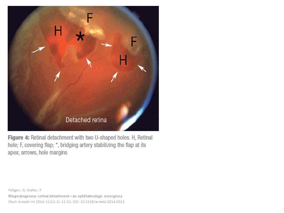 Feltgen, N; Walter, P Rhegmatogenous retinal detachment—an ophthalmologic emergency Dtsch Arztebl Int 2014; 111(1-2): 12-22; DOI: 10.3238/arztebl.2014.0012