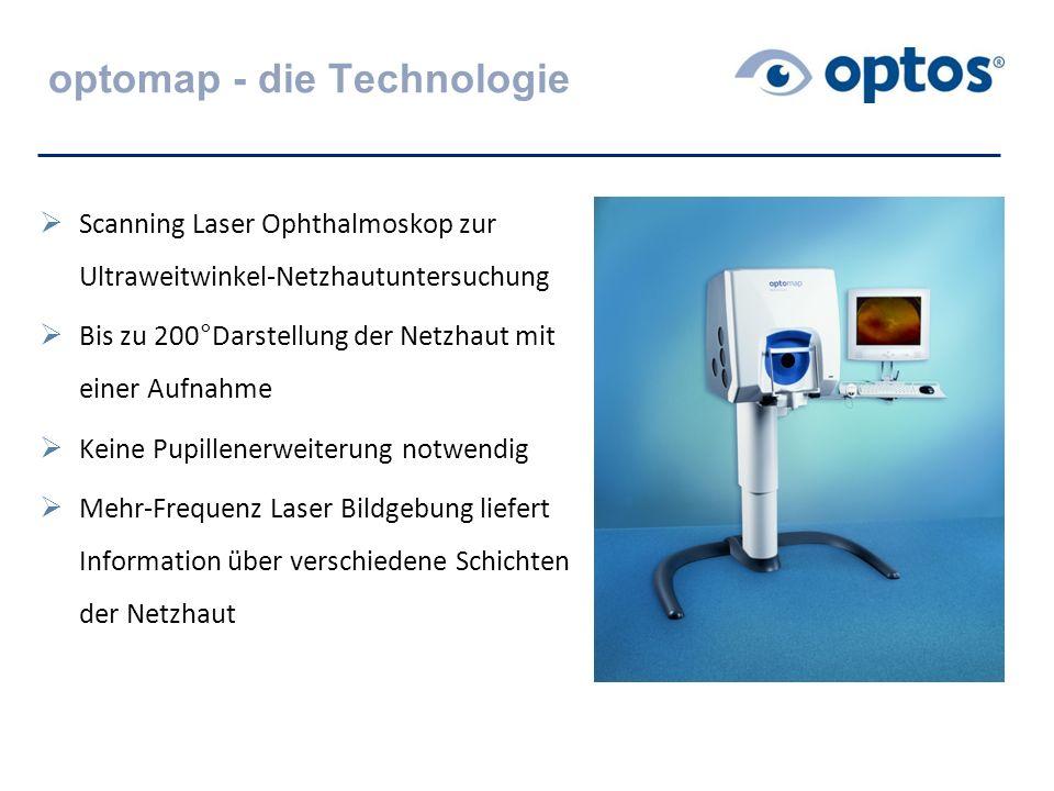 optomap - die Technologie  Scanning Laser Ophthalmoskop zur Ultraweitwinkel-Netzhautuntersuchung  Bis zu 200°Darstellung der Netzhaut mit einer Aufn