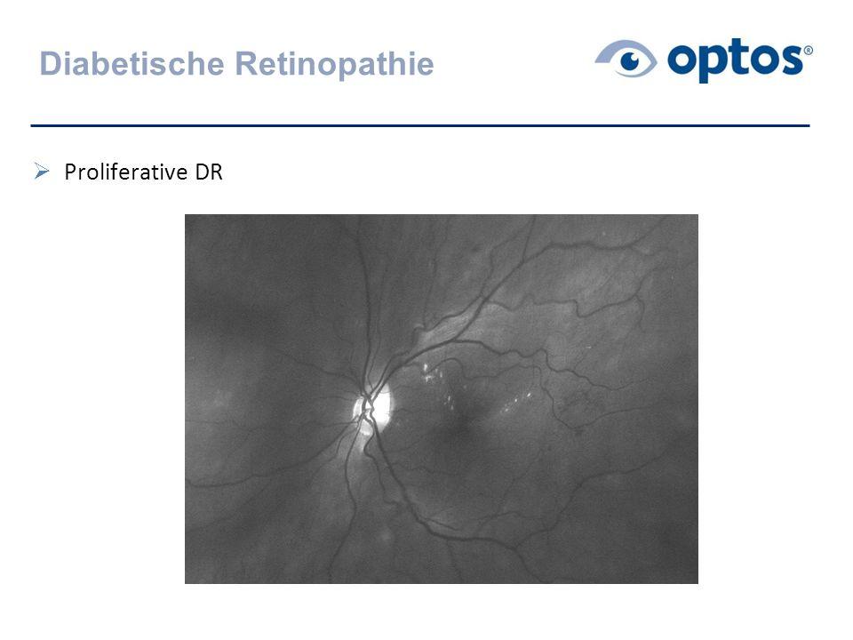 Diabetische Retinopathie  Proliferative DR