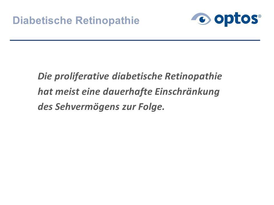 Diabetische Retinopathie Die proliferative diabetische Retinopathie hat meist eine dauerhafte Einschränkung des Sehvermögens zur Folge.