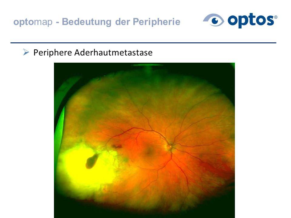 optomap - Bedeutung der Peripherie  Periphere Aderhautmetastase