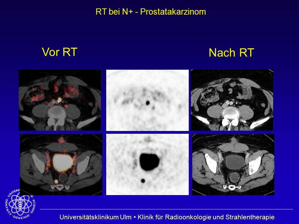 Universitätsklinikum Ulm Klinik für Radioonkologie und Strahlentherapie RT bei N+ - Prostatakarzinom Nach RT Vor RT